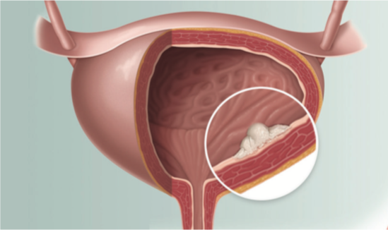 Δρ Γκρίτσιος Παύλος - Καρκίνος ουροδόχου κύστης